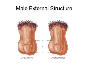 male_external_matching
